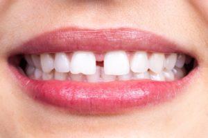 teeth with a diastema